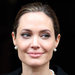 Angelina Jolie underwent a preventive double mastectomy.