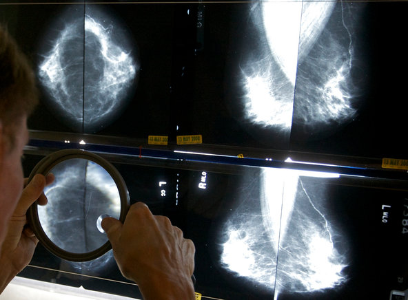 A radiologist uses a magnifying glass to check mammograms for breast cancer.
