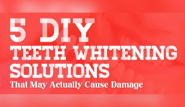 How Quick-Fix Teeth Whitening Products May Actually Damage Your Teeth - Infographic