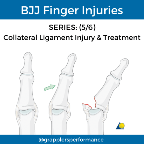 BJJ Finger Collateral Ligament Injury
