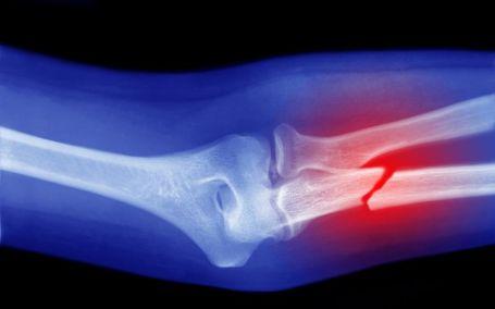 BJJ Bone Injury