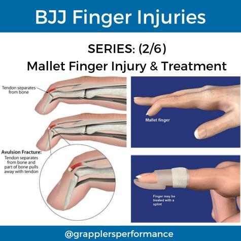 BJJ Finger Injury: Mallet Finger