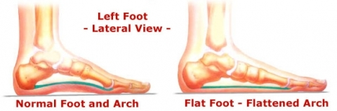 What Is Flatfoot and Why Should We Worry About It? | Great ...