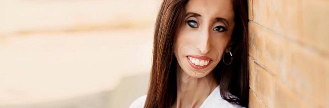 lizzie velasquez 'world's ugliest woman' at tedxwomen