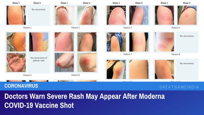 Doctors Warn Severe Rash May Appear After Moderna COVID-19 Vaccine Shot