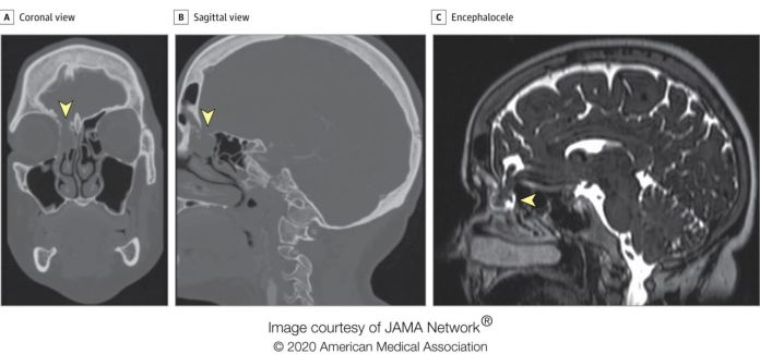 Nasal testing swab punctured a part of the brain