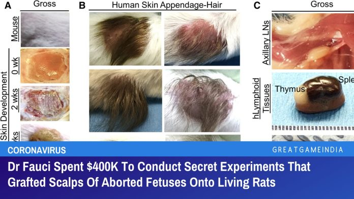 Dr Fauci Spent $400K To Conduct Secret Experiments That Grafted Scalps Of Aborted Fetuses Onto Living Rats
