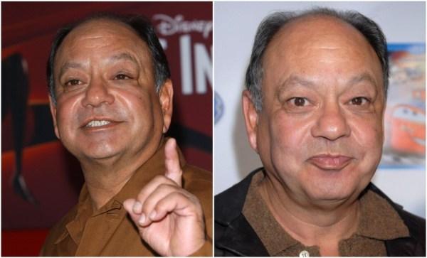 Заячья губа фото до и после операции у знаменитостей