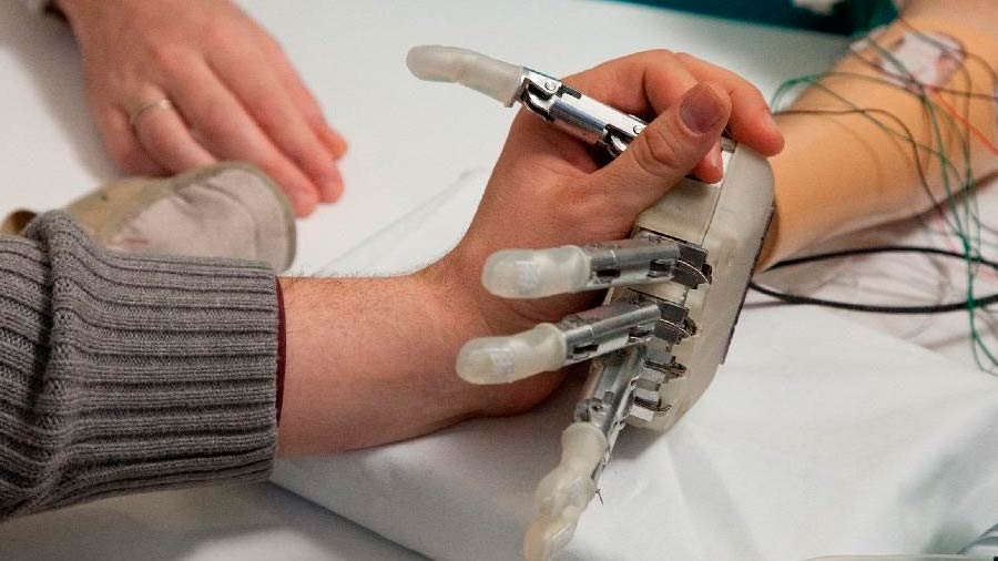 The prosthesis that can transmit the touch sensation
