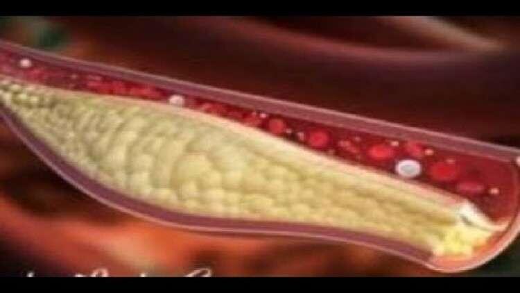 عوامل ترفع مستوى الكوليسترول في الدم