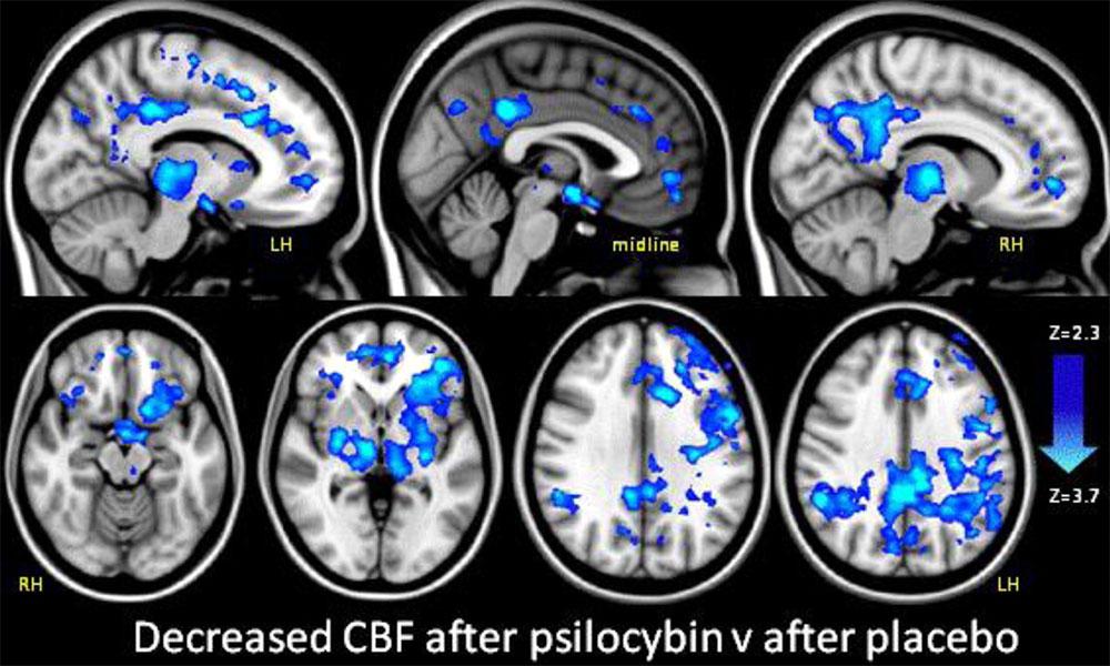 Psylocibin vs placebo