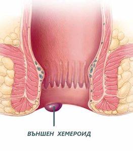 Крем за хемороиди 1