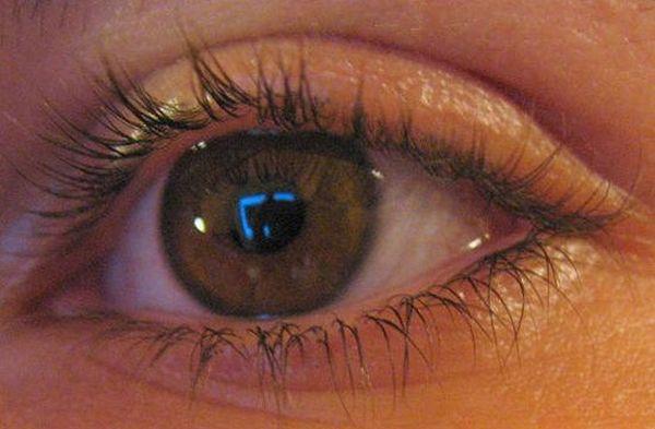 Photovoltaic eye implants