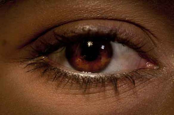 안구건조증-눈-시력-안과-안경-눈다래끼-속다래끼-다래끼