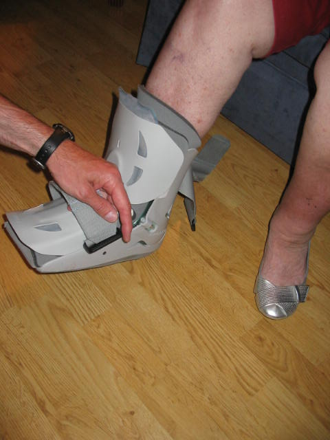Mom's boot cast