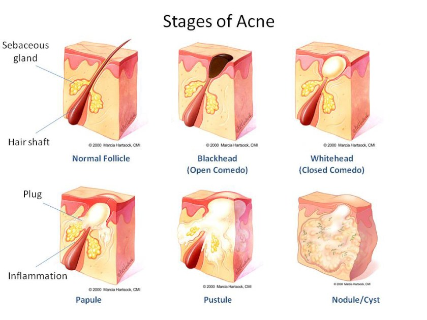 stages-of-acne