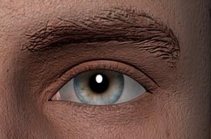 eyesbefore