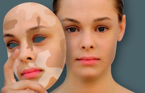 Белые пятна на лице, почему появляются, фото и как лечить