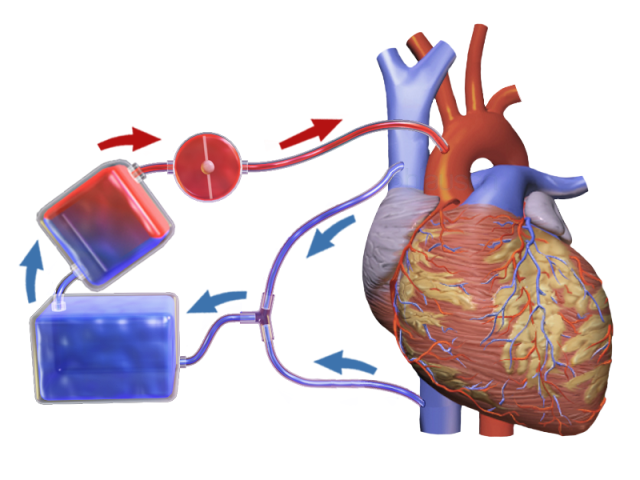 Modul de conectare. sursă: https://upload.wikimedia.org/wikipedia/commons/2/24/Blausen_0468_Heart-Lung_Machine.png