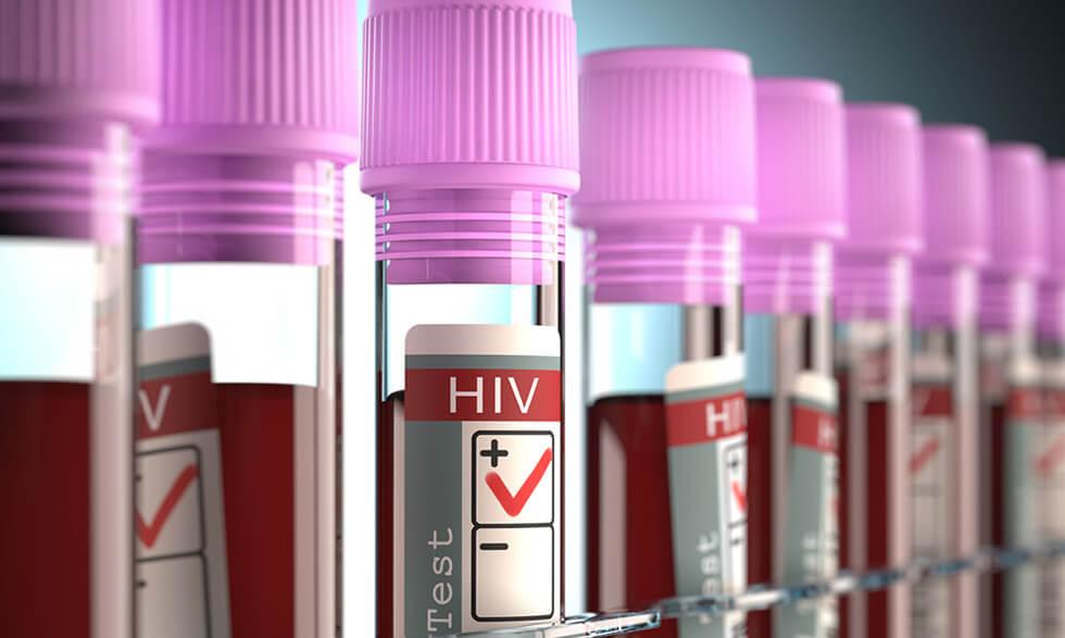 Lucha contra el VIH se está estancando, afirma la ONU