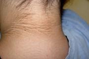 El oscurecimiento del cuello se debe a la prediabetes