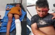 Ebrio, atropella y deja grave a una niña de 12 años, en Tahdziú