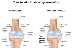 illustration comparing a normal knee with a knee with a torn ACL