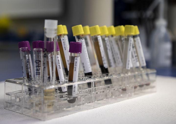 За сутки в Беларуси зарегистрированы 1276 пациентов с COVID-19, выписан 1361