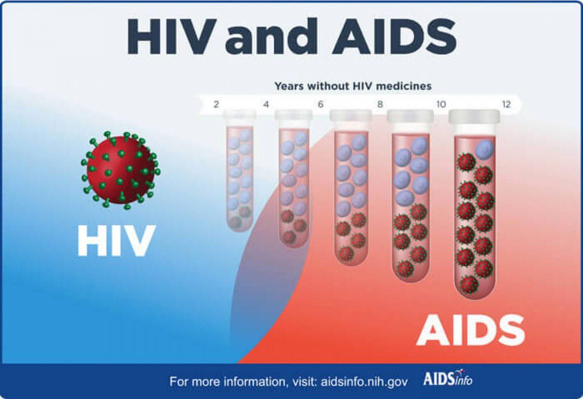 Ano Ang Mga Sintomas Ng Hiv At Aids Hiv Aids Baka