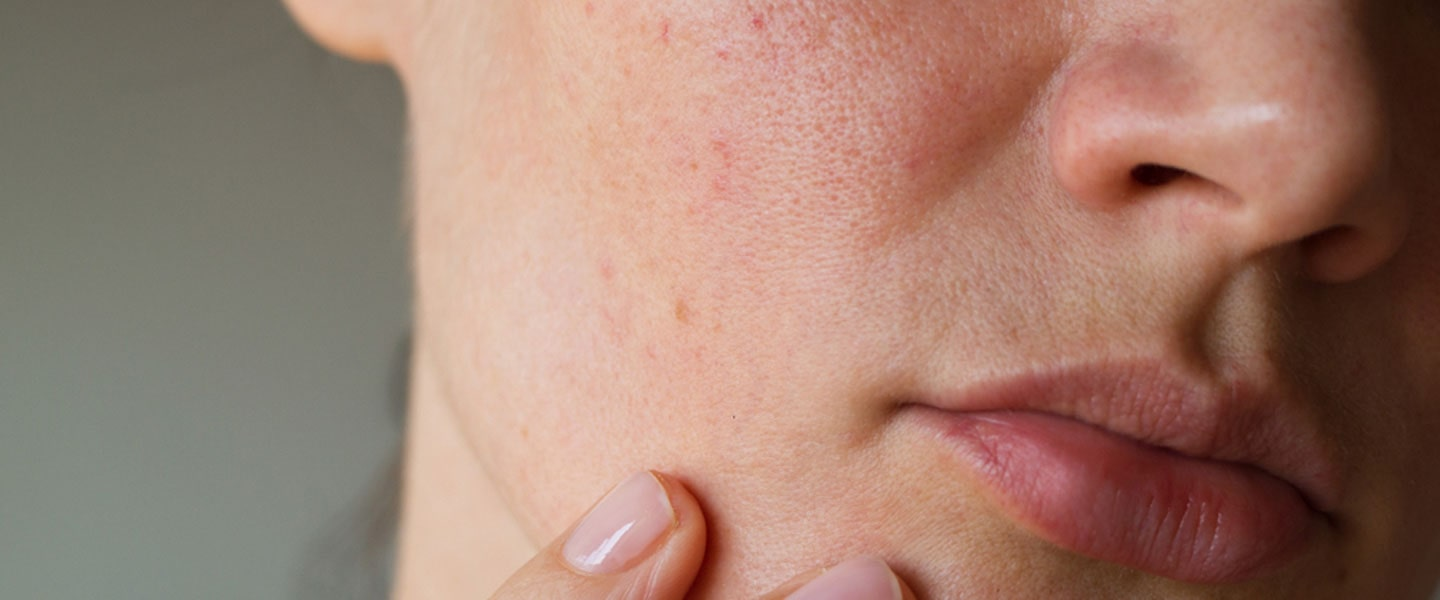 How are skin spots? How about skin spot treatments?