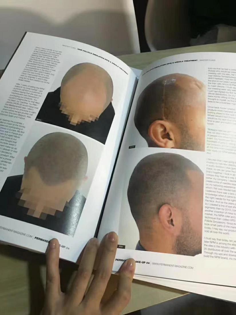 紋髮際線缺點???紋髮際線推薦更勝植髮的3特點,變美其實你有更好的選擇! 紋髮際線優點的確有很多,方便、快捷,做完沒有什麼恢復期;缺點就是需要定期需要補色,只適合髮際線高度沒有問題,單純的發量比較稀疏的人