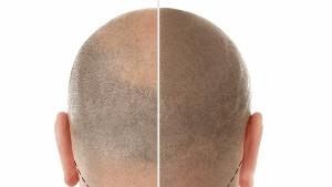 NPM紋髮 脫髮