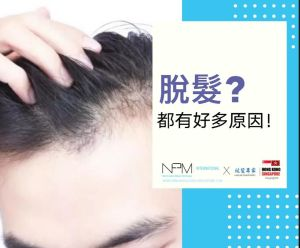 NPM紋髮 禿頭 脫髮