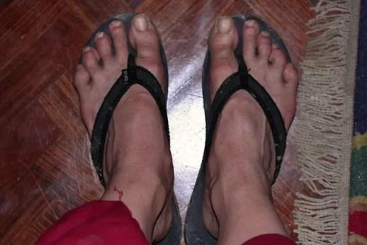 peasant feet