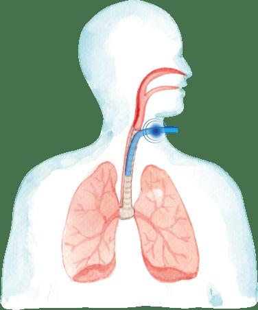 traqueostomía para ventilador mecánico