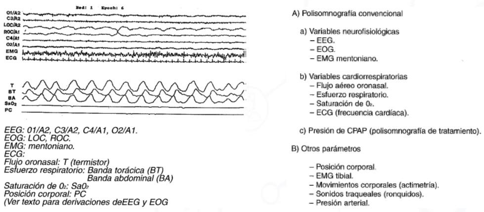 Registro polisomnográfico normal y parámetros de los estudios del sueño.