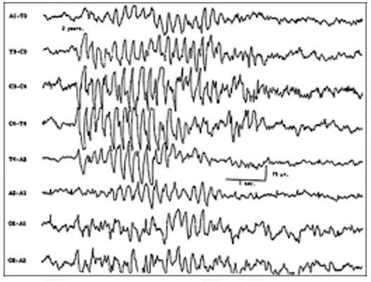 EEG epiléptico