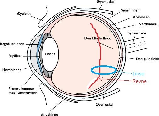 Illustrasjon av øyet og hvor Grybetrotters øye var skadet