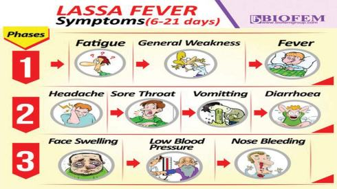 Image result for lassa fever