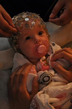 Baby with 124 soft electrodes placed over the head