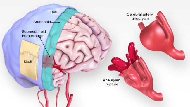 (SAH) occurs when a blood vessel on the surface of the brain ruptures and bleeds into the space between the brain and the skull.  (ICH) occurs when a blood vessel bleeds into the tissue deep within the brain. - AHA