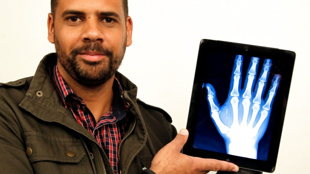 iPhone 6 and a Microchip Implant