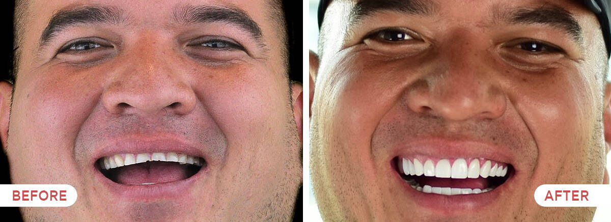Guatemala Dental Team before and after showcase - full mouth porcelain crowns and veneers