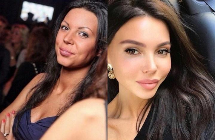 Оксана, Самойлова, до и после