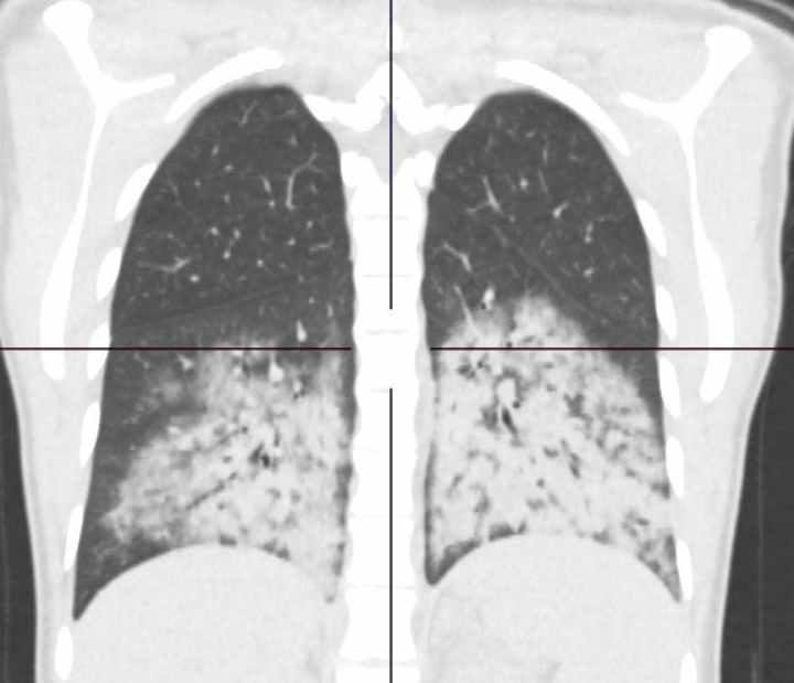 Чернобелый снимок поврежденных легких