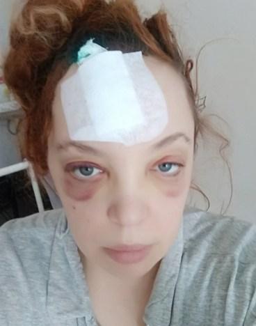 Травмы лица после схода льда в Петрозаводске