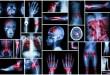 10 Penyakit Paling Mematikan di Indonesia Menurut WHO dan Balitbangkes