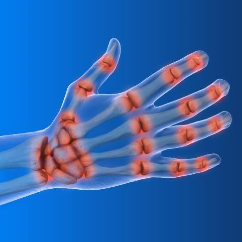 schmerzen im bereich des handgelenkes