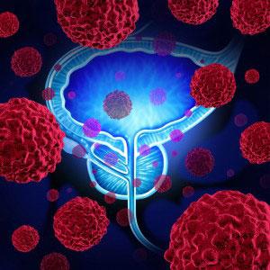 Cancer de la prostate : stabilisation par un traitement métabolique – report de la prostatectomie
