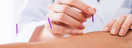 sessão de acupuntura com agulhas na pele